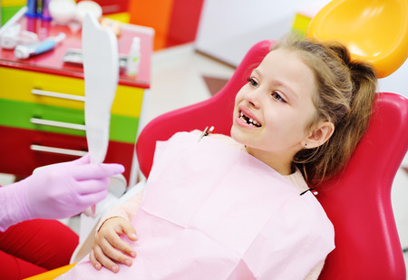 kid girl preschooler with no front milk teeth smiling sitting in the dental chair. Pediatric dentistry Stock Photo