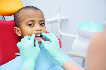 little cute black baby boy African American sitting in dental chair. Pediatric dentistry