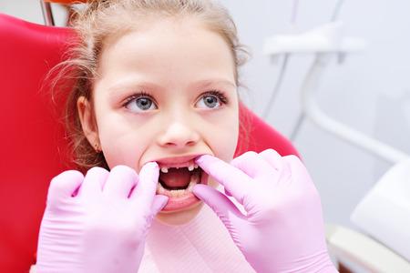 Kleines Mädchen, das auf dem Zahnarztstuhl in der Kinderzahnarztpraxis sitzt. Frühprävention, Mundhygiene und Milchzahnpflege. Standard-Bild