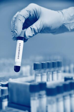 a glass test tube or a flask with blood in the hands of a scientist on the background of a laboratory