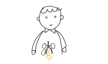 kidney transplant: kidney transplant patient Stock Photo