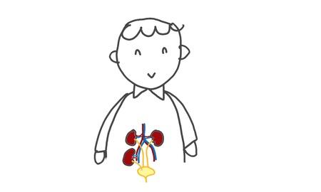 donacion de organos: paciente con trasplante renal