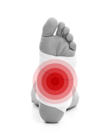 jambe cass�e: Homme avec une jambe cass�e isol�e sur fond blanc