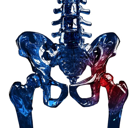 hip joint pain: 3D illustration of a human skeleton hip in pain. Isolated over white background.