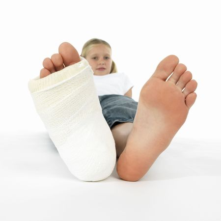 young girl feet: girl with a broken leg (close-up of feet, one with a plaster bandage) Stock Photo