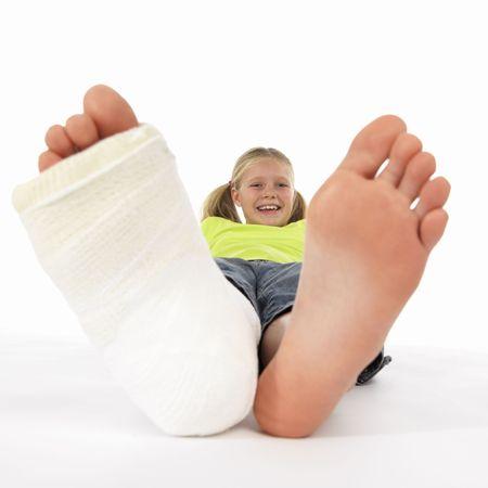 jambe cass�e: fille avec une jambe cass�e (plan rapproch� des pieds, un avec un bandage de pl�tre) Banque d'images