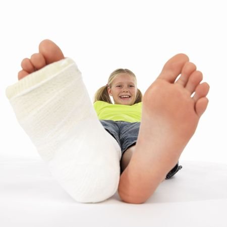 big toe: girl with a broken leg (close-up of feet, one with a plaster bandage) Stock Photo