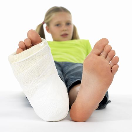 girl with a broken leg (close-up of feet, one with a plaster bandage) Stock Photo