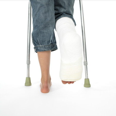 plaster foot: girl with a broken leg  Stock Photo