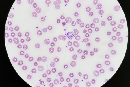 cbc: Blood smear show platelet clumping