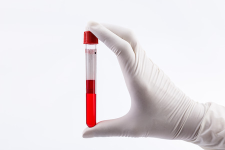 Hand holding test tube with blood plasma ready for testing