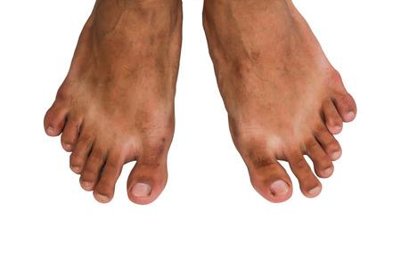 phenomenon: Foot with twelve toe, medical phenomenon