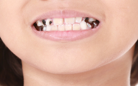 rotten teeth: Child try to smile with decay teeth Stock Photo