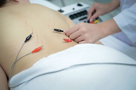Electro Acupuncture. Traditional Chinese acupuncture and Electroacupuncture on body of patient