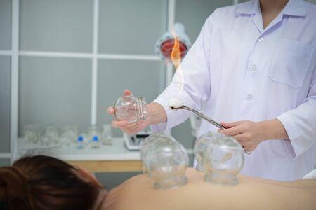 Doctor preparando vasos para colocar en la espalda del paciente para el tratamiento de ventosas, tratamiento de medicina tradicional china.
