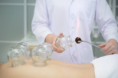 Arzt bereitet Tassen vor, um sie für die Schröpfbehandlung auf den Rücken des Patienten zu legen, Behandlung der traditionellen chinesischen Medizin. Standard-Bild