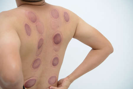 A man back with blood marks massaged after taking Chinese cupping therapy
