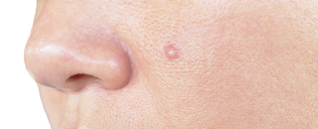 the scar: Human face with scar and acne skin