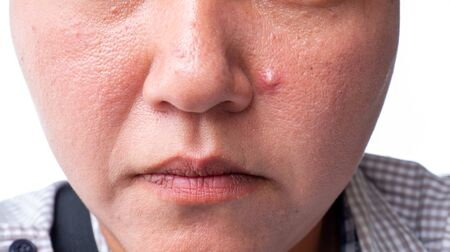 Closeup of red skin with acnes moles and pores on the face with oily skin and acne scars skin Stock Photo