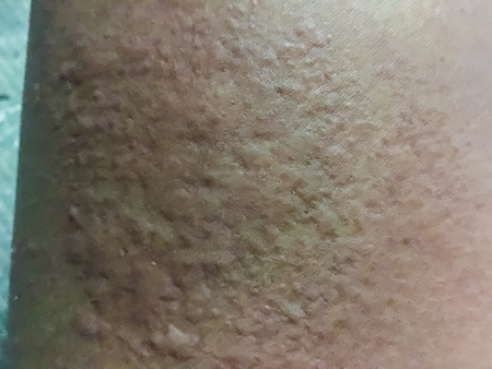 pokrzywka: Close up view of cold urticaria allergic rash. Symptoms of itchy urticaria.