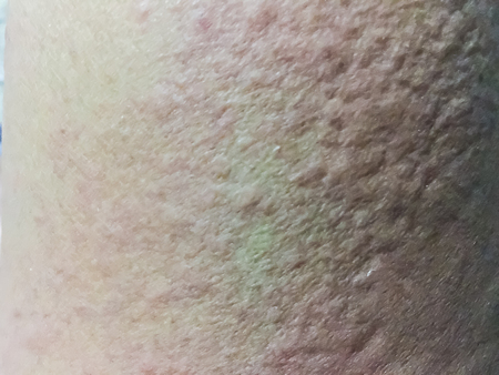 the lesions: Close up view of cold urticaria allergic rash. Symptoms of itchy urticaria.