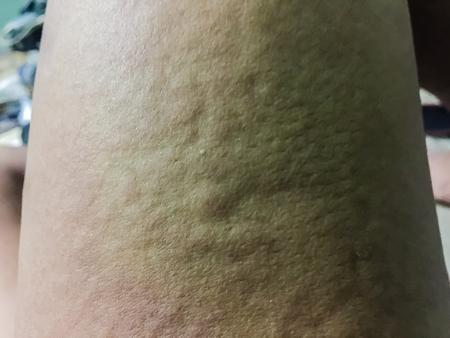 寒い 蕁 麻疹