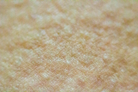 Close up view of cold urticaria allergic rash. Symptoms of itchy urticaria.