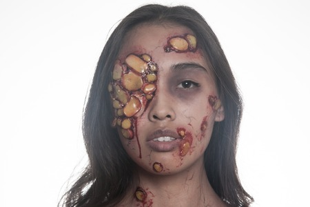 Girl with sores and blood on their face. realistic Halloween makeup.