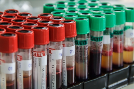 Blood tube,  molecular method and blood testing Stock Photo