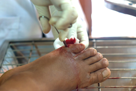 wound a foot flows blood is red cut on a tel skin wound of copula to cut veins pain professional.