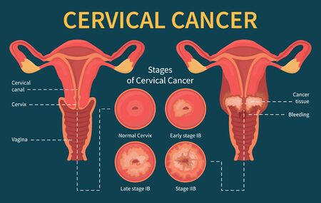 Cervical cancer infographic. Stage of disease. Female reproductive system. Progress of the spread of infected cells due to the virus. Dysplasia and ectropion.