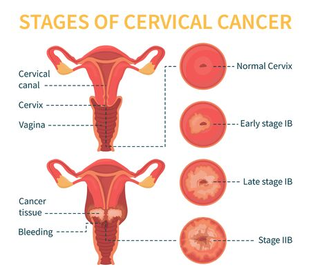 Stages of cervical cancer. Women s reproductive system. The effect of papillomavirus on the cervix. Vector infographic.