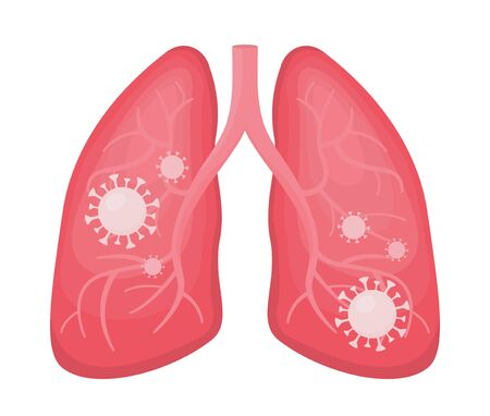 Flat vector illustration of human lungs infected with coronavirus or viral pneumonia and covid. Pandemic impact on your health, virus cells, detail outline of anatomy organ isolated.