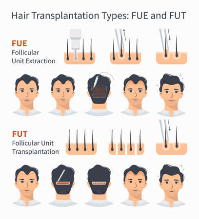 Types and stages of hair transplantation FUE and FUT Follicular Unit Extraction. Treatment of baldness, alopecia, mens hair loss. Vector medical infographics, a male head scalp. Strip, graft machine.