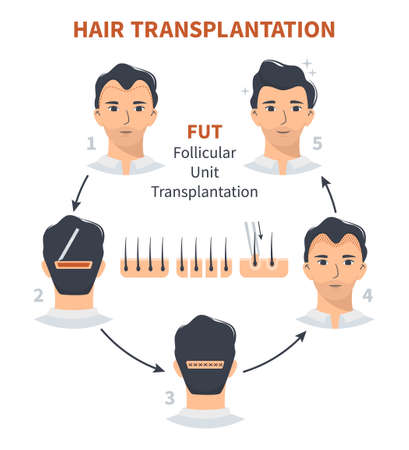 Stages of hair transplantation FUT Follicular Unit. Treatment of baldness, alopecia, mens hair loss. Vector medical circle infographics, a male head scalp. Strip, graft machine.