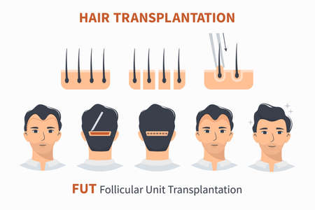 Stages of hair transplantation FUT Follicular Unit. Treatment surgery of baldness, alopecia, mens hair loss. Vector medical infographics, a male head scalp. Strip, graft machine.