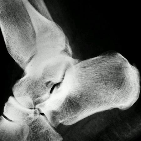 rentgen: Human rentgen photo leg. Stock Photo