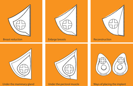 breast implant: Vector icons plastic surgery, cosmetic surgery, medical care