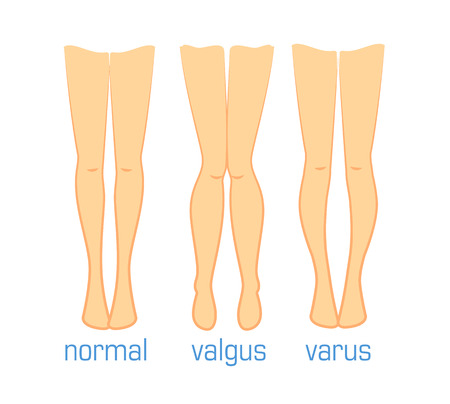 Vector medical illustration types of curvatures human feet. Plastic surgery, treatment diseases leg bones, toe alignment valgus varus and normal. Ilizarov method Vettoriali