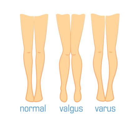 Vector ilustración médica tipos de curvaturas pies humanos. La cirugía plástica, enfermedades de tratamiento de huesos de la pierna, dedo del pie varo valgo y normal. método de Ilizarov Ilustración de vector