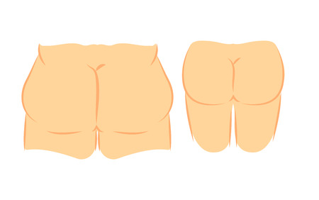 grosse fesse: Illustration médicale deux types de graisse dos féminin et minces. élimination chirurgie de la cellulite en plastique et la liposuccion. correction de levage de Butt. Illustration