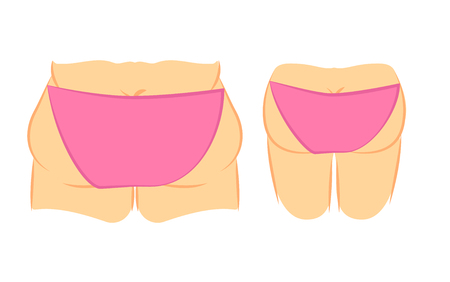 liposuction: Medical vector illustration two types female back in panties, bikini. fat and thin. Plastic surgery cellulite removal and liposuction. Butt lift correction.