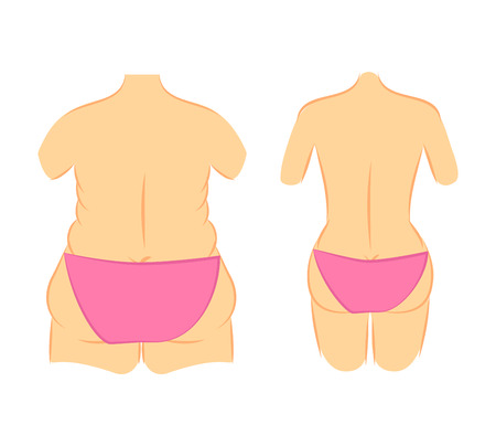Medical vector illustration two types female figures in panties, bikini thick and thin. Plastic surgery cellulite removal and liposuction. Butt lift, correction waist line. Illustration