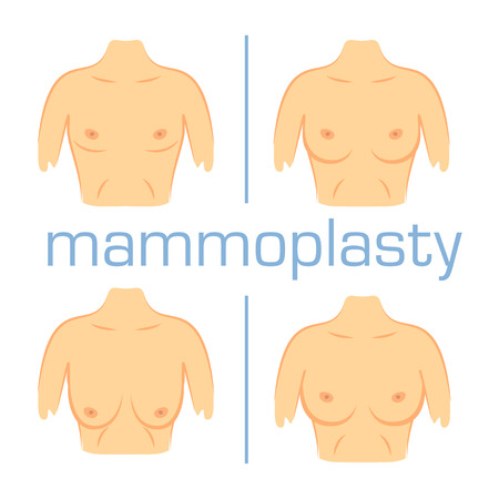 Vector illustration mammoplasty operation form nose. Aesthetic plastic surgery beauty. Correction muscles chest white background. Stock Illustratie