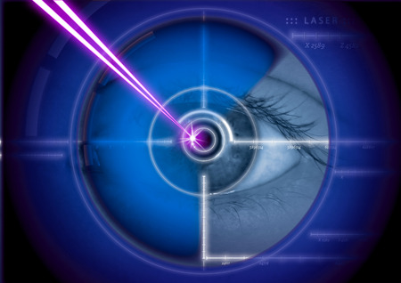 dioptric correction eye laser clinic, eye, pupil, retina, iris, close, close up, crosshairs, target, medicine, man, machine, camera, radar, scanner, scanning, target, soldier, military, close, close-up , army, Internet, Electronics, People,