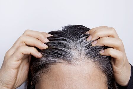 Young woman with white hair problem.