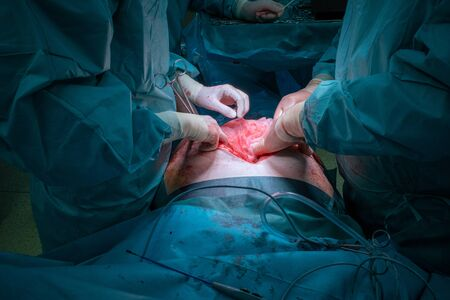 a surgical team performs a surgical abdominal operation