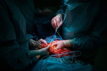 un equipo quirúrgico realiza una operación quirúrgica abdominal
