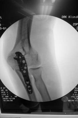 An X-ray shows a titanium plate that was used to stabilize an elbow fracture