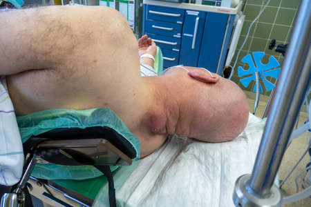 a patient with a large abscess in the neck lying on an operating table to be operated on